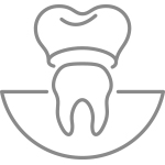 Crowns, Veneers, Onlays and Bridges