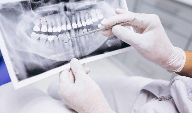 panoramic-xray-dental-surgery